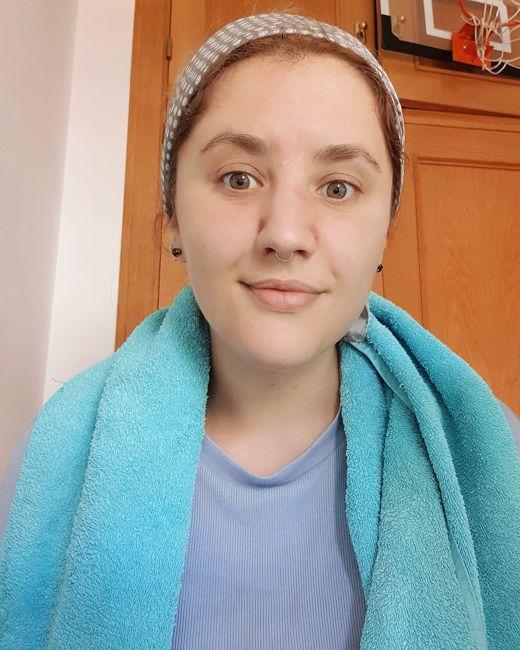 limpieza-poros-succionador